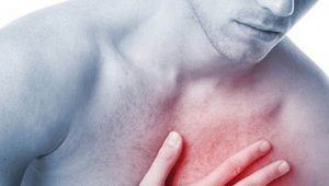 Síntomas de que una persona puede estar a punto de sufrir un infarto