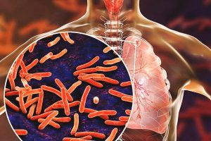 Enfermedad de la tuberculosis del riñón