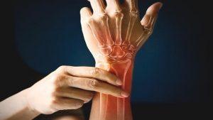 ¿Cómo tener los huesos más fuertes?