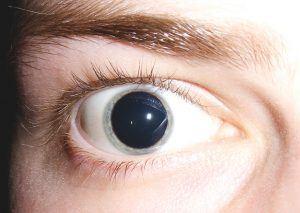 Dilatación pupilar o midriasis