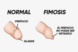 La fimosis en los adultos