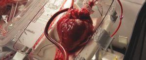 Transplantes de corazón